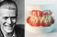 Μασέλα από την (αυθεντική) οδοντοστοιχία του David Bowie