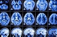 Μίνι ανθρώπινοι εγκέφαλοι σε παραγωγή